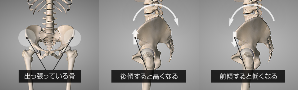 骨盤の左右差タイプの姿勢