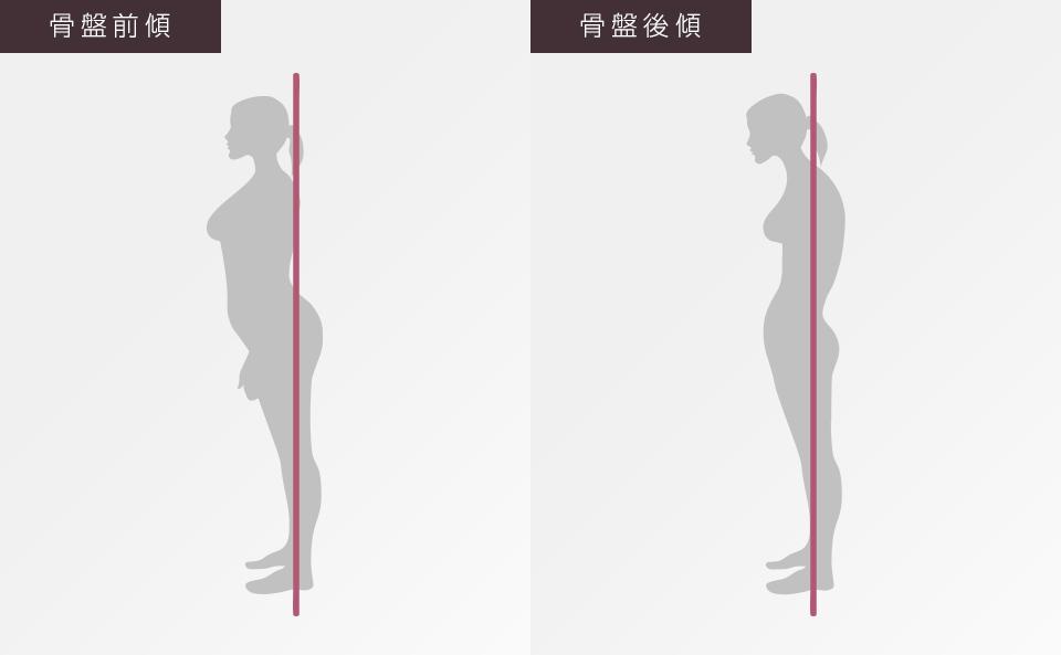 骨盤前傾タイプの姿勢・骨盤後傾タイプの姿勢