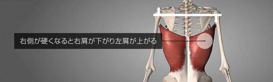 右側の広背筋が硬くなると右肩が下がり・左肩が上がり → カラダが歪む
