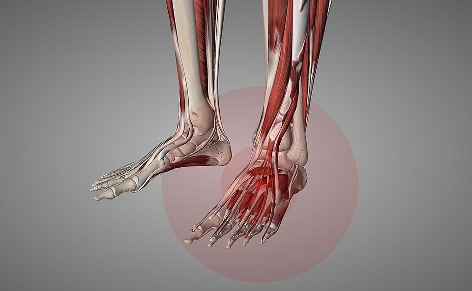 足裏が痛くなる原因とアーチが崩れる原因