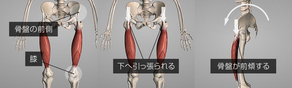 大腿直筋が硬くなると骨盤の前側が下へ引っ張られ骨盤が前傾してしまう
