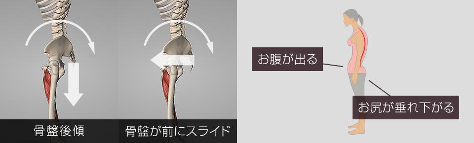 骨盤後傾・骨盤が前にスライド