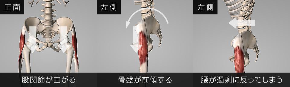 股関節が曲がり骨盤が前傾し腰が過剰に反ってしまう