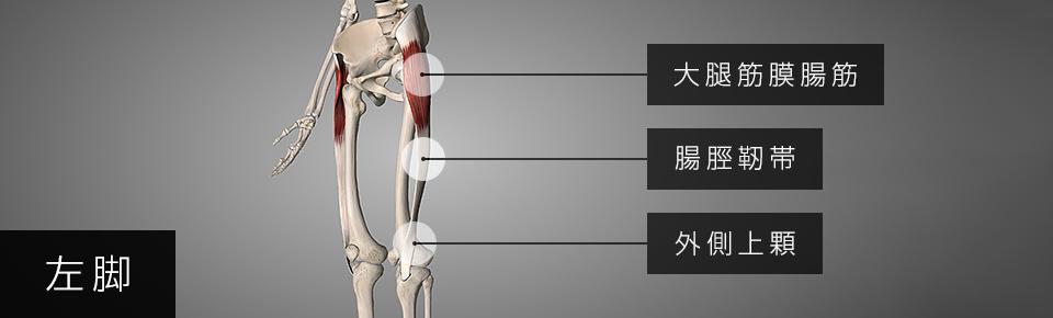 大腿筋膜張筋が硬くなると膝の外側に痛みが出る