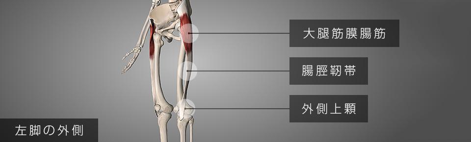 大腿筋膜腸筋が硬くなると膝の外側に痛みが出る