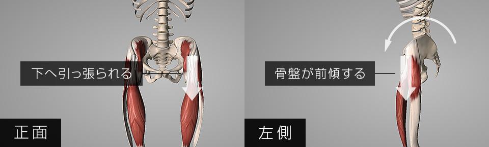 腸腰筋・腸腰筋・大腿筋膜張筋が硬くなると骨盤が前傾する