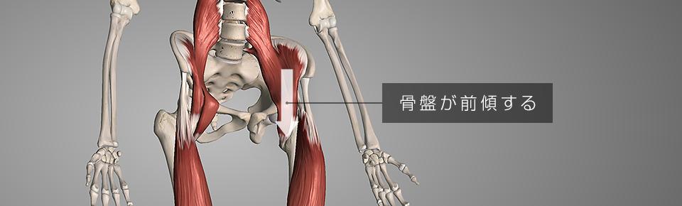 腸腰筋・大腿四頭筋が硬くなり骨盤が前傾する