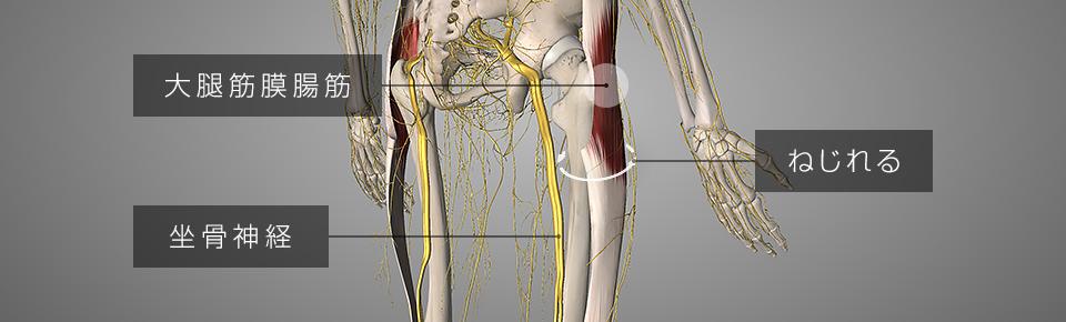 大腿筋膜腸筋・坐骨神経痛