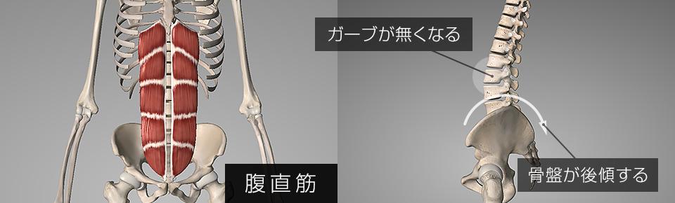 腹直筋が硬くなると骨盤が後傾し腰椎のカーブが失われフラットバック姿勢の原因になる