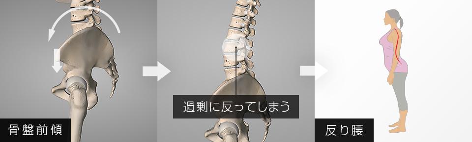 脊柱起立筋が硬くなると骨盤が前傾しやすくなり反り腰になる