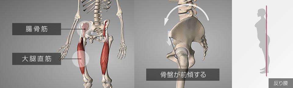 大腿直筋・腸骨筋が硬くなると骨盤が前傾し反り腰の原因になる