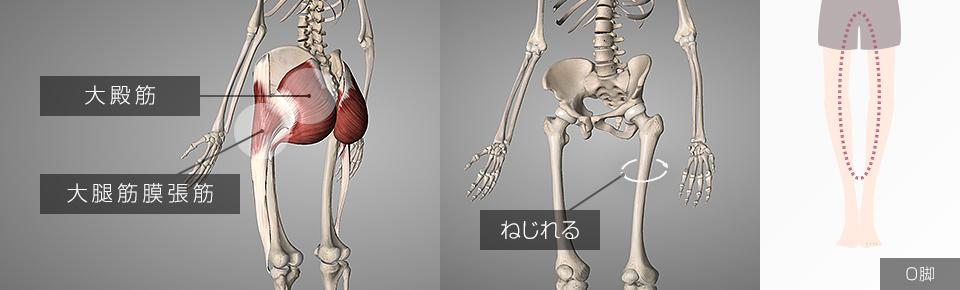 大腿筋膜張筋・大殿筋が硬くなると脚が内側にねじれてO脚・XO脚になる