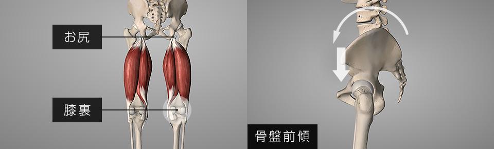 ハムストリングスが弱くなると骨盤が前傾しやすくなる