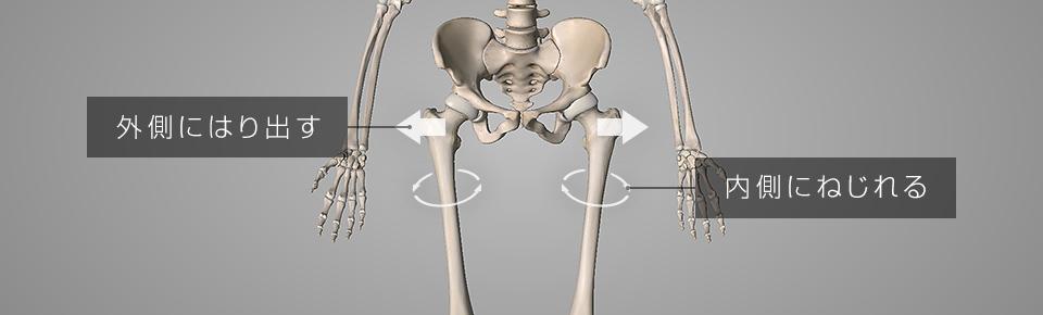 脚の骨が外側にはり出しておしりが大きく見える