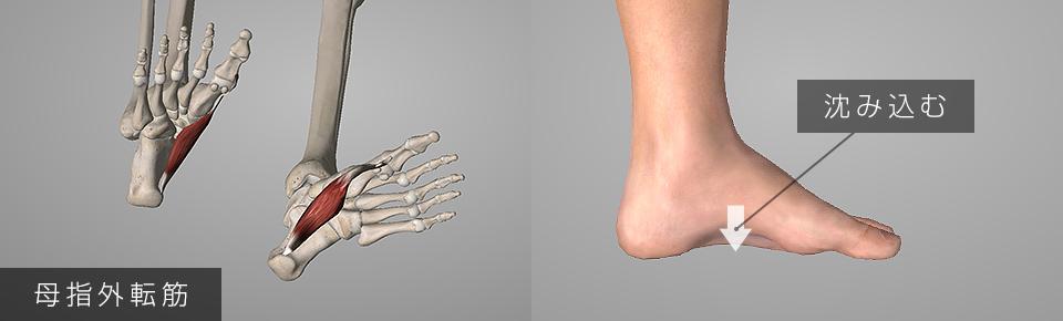 扁平足・母指外転筋