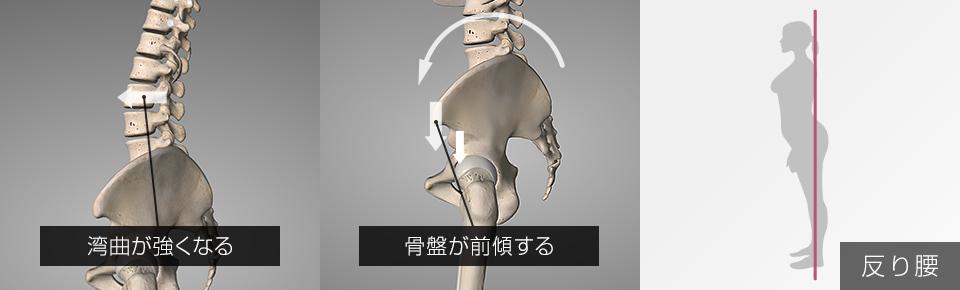 反り腰「腰椎の湾曲が強い・骨盤が前傾する」