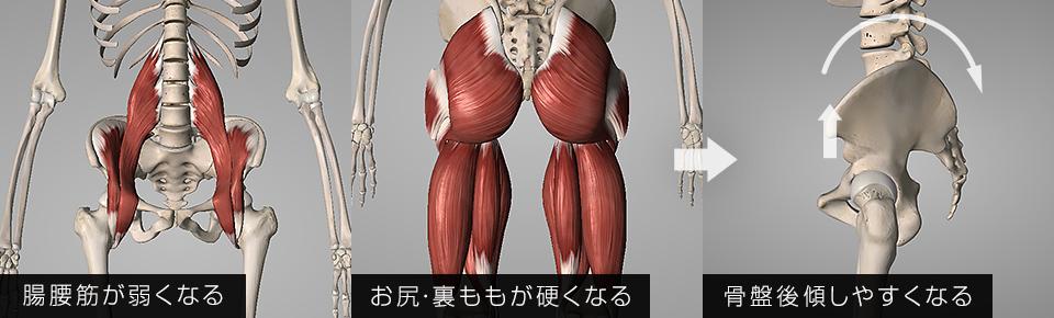 裏ももお尻の筋肉が硬くなる・脚の付け根の筋肉が弱くなると骨盤が後傾しやすくなる